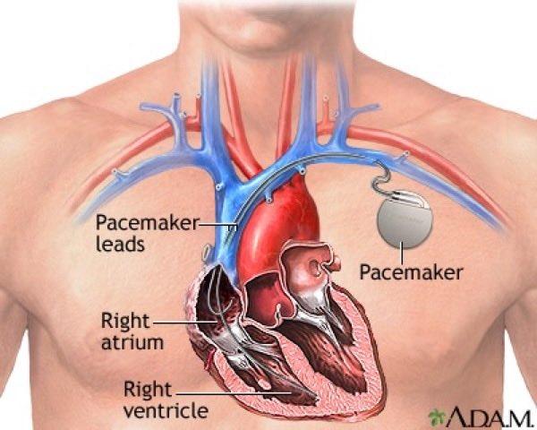 A cardiovascular diagram that displays a pacemaker's position in relation to the heart.